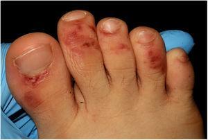 Máculas violáceas purpúricas en el dorso de los dedos de los pies.