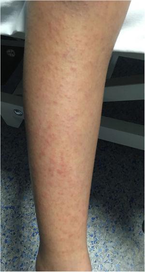Erupción micropapular eritematosa.
