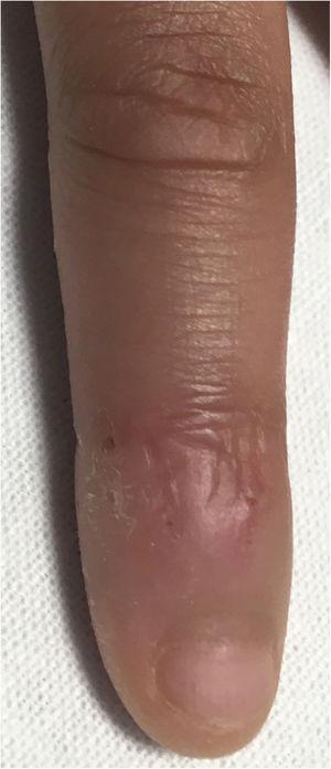 Lesiones edematosas.