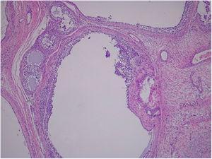 Anatomía patológica: patrón folicular tapizado por células de la granulosa.