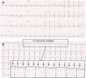 A)Electrocardiograma obtenido en UCIP a las 24h del ingreso. Bradicardia QRS estrecho con sospecha clínica de bloqueo AV de alto grado 2:1. Las ondas P bloqueadas «ocultas» en la onda T del latido precedente son difíciles de identificar. B)Electrocardiograma con derivación esofágica (V1) obtenido inmediatamente después del ECG que se muestra en A. Se observa un BAV de alto grado con una relación AV de 2:1. La actividad auricular (flechas) y ventricular parecen independientes, ya que los intervalos AV son variables latido a latido. Nota: Al no disponer de cables esofágicos para neonatos, la obtención de la derivación esofágica se realizó de la siguiente forma: se inserta una sonda gástrica previamente purgada con suero fisiológico que actúa de conductor y sin retirar completamente el fiador metálico, este se conecta a la derivación del ECG. Se va retirando la sonda lentamente hacia el esófago observando el ECG hasta que se logra evidenciar la actividad auricular con la máxima amplitud posible. El trazado esofágico permite observar la actividad auricular amplificada y poder analizarla de forma independiente al QRS. Esto es muy útil en el diagnóstico de determinadas taquicardias supraventriculares o en casos de alteraciones de la conducción, cuando no está clara la relación AV en el ECG de superficie.