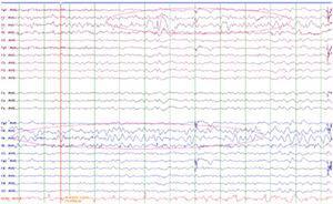 Electroencefalograma: actividad bioeléctrica cerebral anormal por focalidad lenta en región frontotemporal de predominio derecho y descargas epileptiformes de punta-onda en región temporal izquierda. Lentificación de la actividad de fondo. PEATC normales. GAGs negativos.