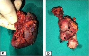 Pieza quirúrgica de nefrectomía derecha. 2a) Riñón derecho significativamente pequeño para la edad de la paciente. 2b) Fragmento de arteria renal derecha, nótense los dos aneurismas saculares calcificados (asteriscos), el mayor de ellos parcialmente roto (flecha).