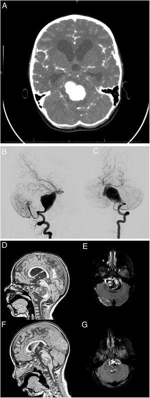 A) La TC mostró hemorragia subaracnoidea e hidrocefalia obstructiva. Angiografía cerebral. Serie de la arteria vertebral izquierda, proyecciones lateral B) y anteroposterior C). Aneurisma gigante fusiforme en los dos tercios inferiores de la arteria basilar. Se descartaron opciones terapéuticas como el sacrificio del vaso principal o la reconstrucción asistida con stent por la edad de la paciente y consideraciones anatómicas. Secuencias T1 y recuperación de la inversión atenuada de fluido (FLAIR) de RM: postoperatorio inmediato (D y E) y seis meses de postoperatorio (F y G). Las imágenes muestran una reducción progresiva del saco aneurismático y resolución parcial del efecto masa y la hidrocefalia obstructiva.