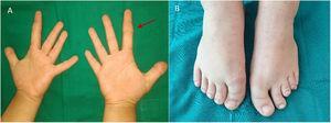 A) Braquidactilia E con afectación de falange media del 2.° dedo de ambas manos más ancha, con forma trapezoidal. B) Braquidactilia E asimétrica en pies.