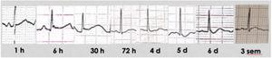 Evolución del trazado electrocardiográfico tras electrocución de alto voltaje (derivación III). Se objetiva un trazado normal al ingreso, con posterior aparición de onda J de Osborn (6h), alargamiento del QTc y ritmo nodal (30h), aplanamiento progresivo y descenso de ST, con normalización posterior.