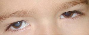 Leucocoria del ojo derecho por catarata.
