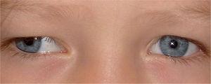 Reflejo de Hirschberg en paciente con exotropía. Esta sencilla prueba se basa en la observación del reflejo sobre la córnea y se mide por la distancia que separa el reflejo corneal del centro de la pupila. Si el reflejo es simétrico y está en el centro de la córnea, existe ortotropía.
