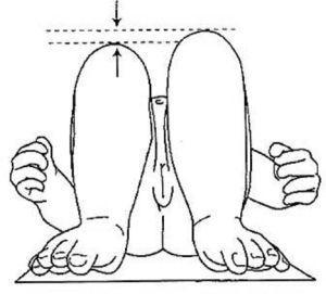 Signo de Galeazzi: en decúbito supino se flexionan las caderas y las rodillas sin apoyar los pies en la cama. En este caso se observa un acortamiento del muslo derecho que indica que la cadera derecha está luxada.
