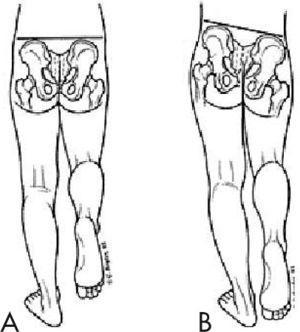 Signo de Trendelenburg. A: Cadera normal; B: El signo de Trendelenburg pone en evidencia en este caso una insuficiencia de la musculatura abductora de la cadera izquierda.