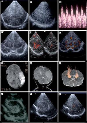 A) USC. Proyección coronal en un paciente con EHI. Se observa un aumento de la ecogenicidad difusa en el parénquima cerebral. B) USC. Proyección parasagital tangencial en un paciente con EHI. Pobre diferenciación córtico-subcortical. Foco hiperecogénico a nivel su cortical. C) CDFI. Paciente con EHI, ondas de VFSC fluctuantes y/o dícrotas. D) USC. Proyección coronal, se observa hiperecogénica parietal derecha, por infarto isquémico en el territorio de la arteria cerebral media derecha. E) Doppler con imagen de flujo en color (power Doppler) proyección sagital a través de la escama del temporal. Se observa una asimetría de flujo entre la arteria cerebral media derecha sana (imagen izquierda) y la arteria cerebral media izquierda afectada (imagen derecha). F) Doppler con imagen de flujo en color (power Doppler) proyección coronal. Se observa una asimetría de flujo entre la arteria cerebral media derecha sana y la arteria cerebral media izquierda afecta. G) RM por difusión. Infarto cerebral parietal izquierdo. H) RM convencional. Secuencia T2, observándose un área extensa parietal izquierda hiperintensa. I) RM con tractografía en paciente con infarto cerebral izquierdo, muestra afectación de las fibras del haz corticoespinal izquierdo. J) USC. Proyección coronal en un paciente con ventriculitis. Se observa una dilatación del ventrículo lateral que presenta refuerzo ependimario y material ecogénico en su interior. K) USC. Paciente con vasculopatía en arterias estriadas. Proyección parasagital mostrando hiperecogenicidades localizadas en las arterias estriadas. L) Doppler con imagen de flujo en color (power Doppler). Paciente con vasculopatía en arterias estriadas. Proyección parasagital mostrando hiperecogenicidades localizadas en arterias estriadas, como lo demuestra el Doppler color. CDFI: Doppler con imagen de flujo en color; EHI: encefalopatía hipóxico-isquémica; RM: resonancia magnética; USC: ultrasonografía cerebral; VFSC: velocidad de flujo sanguíneo cerebral.