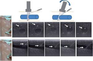 Canalización en maniquí de simulación. Canalización en eje corto (arriba) y eje largo (abajo). Las flechas indican la localización de la punta de la aguja. En la parte superior el diagrama muestra cómo al penetrar la aguja debemos bascular el transductor para visualizar correctamente la punta de la misma.