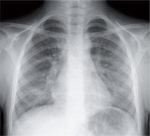 Infiltrado parahiliar peribronquial en una neumonía por Mycoplasma pneumoniae.