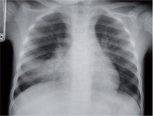 Aumento de densidad por ocupación del espacio aéreo limitado a un lóbulo en una neumonía por Mycoplasma pneumoniae.