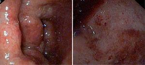 Imagen endoscópica en la colitis ulcerosa. Aspecto granujiento, inflamación continua, úlceras pequeñas confluentes, hemorragias.