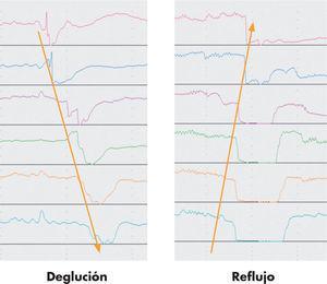 Variaciones en línea de impedancia en deglución y reflujo.