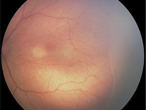 ROP grado 1: línea de demarcación entre retina vascular y avascular.