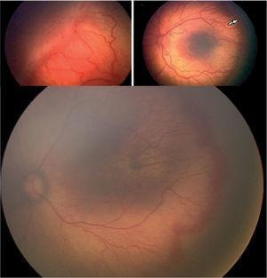 ROP grado 3: proliferación vascular hacia el vítreo.