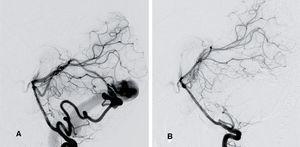 Fístula arteriovenosa pial. Niña de 2 años que comienza con hemorragia cerebelosa espontánea secundaria a rotura de una fístula arterio-venosa pial infratentorial. ASD cerebral, visión lateral. A) La inyección desde la arteria vertebral izquierda muestra una conexión anormal de ramas arteriales provenientes de las arterias cerebelosa superior y cerebelosa postero-inferior izquierdas con una vena supravermiana dilatada que drena muy rápido al seno transverso izquierdo. B) Control final tras el tratamiento de la fístula mediante embolización con coils y pegamento, en el que se aprecia el cierre completo de la lesión. La paciente fue intervenida previamente para evacuar el hematoma cerebeloso.