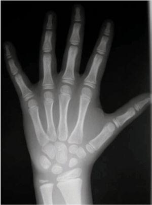 Radiografía posteroanterior de mano y muñeca izquierdas.