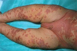 Psoriasis del pañal con diseminación.