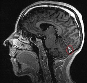 Corte sagital MPR-T1 con gadolinio: defecto de repleción en tórcula (confluencia de senos venosos longitudinal, recto y lateral del encéfalo).