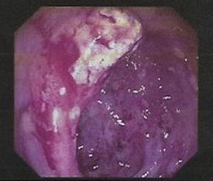 Úlceras en colon ascendente con marcada friabilidad.