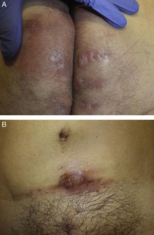 A y B. Mujer de 41 años con HS grado ii que asocia artritis reumatoide.