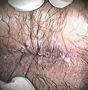 Lesiones cicatrizales.