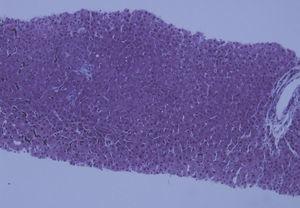 HE×20. Cierta nodularidad del tejido hepático asociado a ausencia de fibrosis.