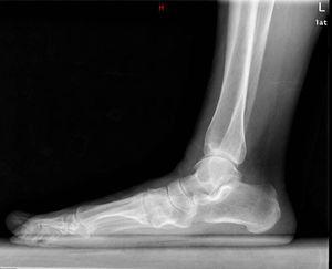 Radiografía de perfil en carga preoperatoria.