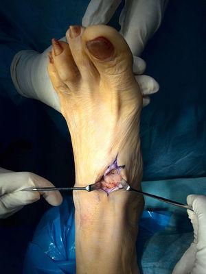 Osteotomía con el aloinjerto.
