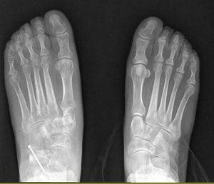 Radiografía anteroposterior en carga postoperatoria.