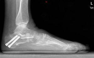 Radiografía de perfil en carga postoperatoria.
