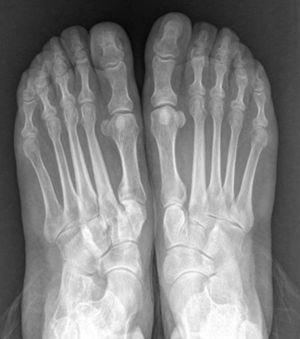 Radiografía anteroposterior en carga preoperatoria.