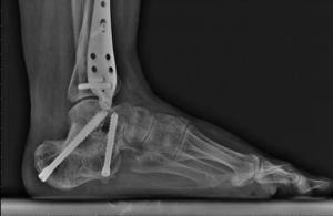 Resultado a los 9 meses de la intervención quirúrgica del mismo caso con aporte de injerto estructural tras abordaje posterior tipo Gallie, con buen resultado radiológico y clínico.