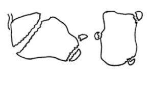 Fractura en «pico de pato» y del proceso anterior (izqda.) y fractura del tubérculo interno y del sustentaculum tali aislado (dcha.).