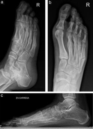 Radiografías con todos los metatarsianos fracturados (3 meses).