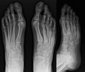 Radiografías finales (14 meses).