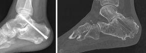 Paciente con secuela fractura de calcáneo intervenido con un tornillo. La TAC a los 9 meses confirmó la ausencia de consolidación. El rescate se hizo con cirugía abierta y fijación con grapas.