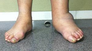 Aspecto externo del pie.