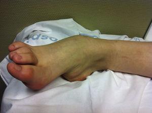 Pie equino-varo secundario a enfermedad de Wilson.