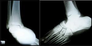 Radiografías de la lesión.