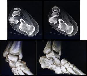TC de la lesión (cortes axiales y reconstrucción 3D).