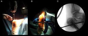 A) Colocación de agujas plantares mediante control fluoroscópico. B) Colocación de la mordaza y piezas de platico termoconformadas para la protección de las partes blandas. C) Control radiográfico final (mordaza radiotransparente).
