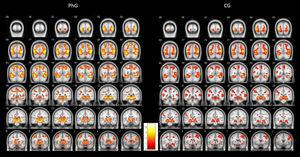Graphical representation of differential brain activations of phobic group (PhG) versus non-phobic control group (CG).