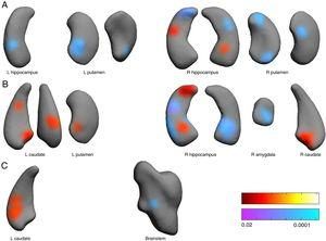 Associations between subcortical nuclei shape and pain scores at the anesthesia (A), pain (B) and analgesia (C) stages. Red color indicates surface positively related to pain scores. Blue colors indicated surface negatively associated to pain scores. L: left hemisphere, R: right. Color bars indicated p-values (red-yellow for positive and blue-violet for negative relationships).