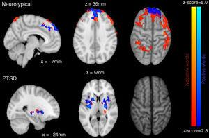 Sagittal (left) and axial (middle), and cortical (right) views of between group activation for NT (top) and PTSD (bottom) participants for negative (orange) and positive (blue) words.