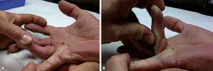 Cuarto dedo de la mano derecha afecto de la enfermedad de Dupuytren, con implicación de las articulaciones MCF e IFP (A). Presenta corrección de la contractura de IFP con la flexión máxima de la MCF (B).