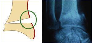 Patrón de lesión del sector radial. Conminución de la cortical externa del radio.